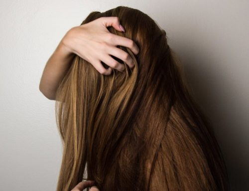 5 Remarkable Home Remedies To Get Rid Of Dandruff Naturally