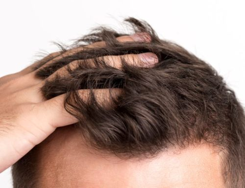 7 Excellent Natural Hair Treatments To Stop Hair Loss Immediately
